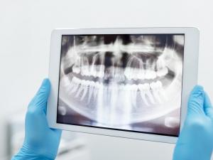 Dental X-Rays 101